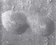 Желвак на поверхности баллона